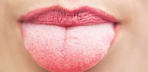 lidah putih